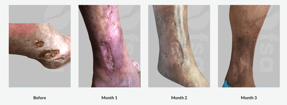 Venous Ulcer Treatment